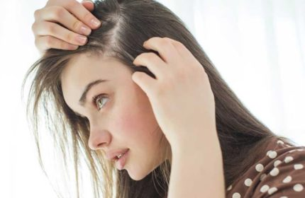 Saçkıran Bulaşıcı mıdır ? Saçkıran Hastalığına Ne İyi Gelir?