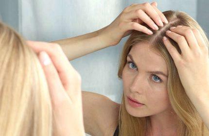 Saç Dökülmesini Önleyecek Şifalı Bitkiler Nelerdir?