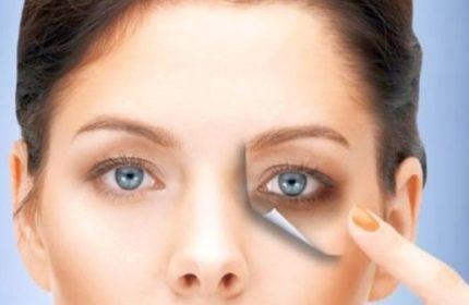 Göz Altı Morluklarının Sebebi ve Tedavisi